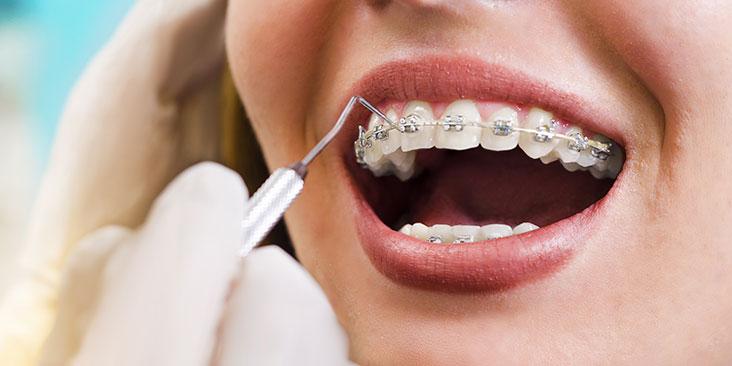 clear braces brooklyn